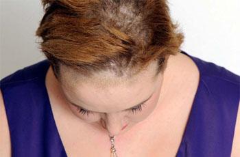 Ekcéma, Atópiás dermatitisz és a hajhullás - Fejbőr irritáció vörös foltok