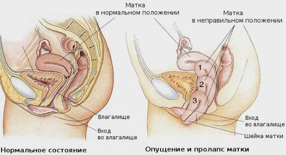 kismedencei szerv prolapsus fogyás